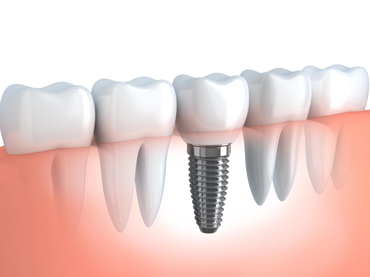 dental implants bridgeton mo
