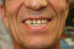 New-smile-Before-Image