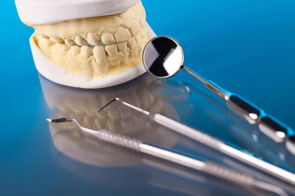 dental tools and mold of teeth | Root Canals Bridgeton, MO