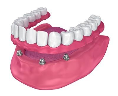 Diagram of Implant supported dentures in Bridgeton, MO