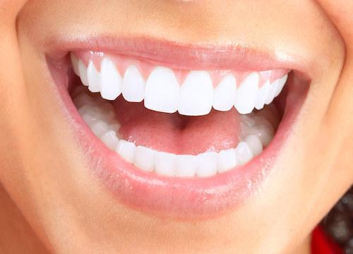 Close up of a cosmetic dentistry patient's smile near 63044