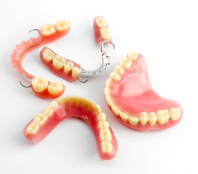 Full & Partial Dentures in Bridgeton MO