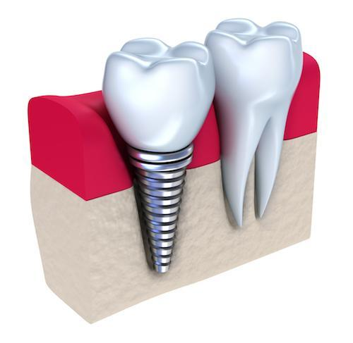 Diagram of dental implant in gums at Kevin Burgdorf DDS