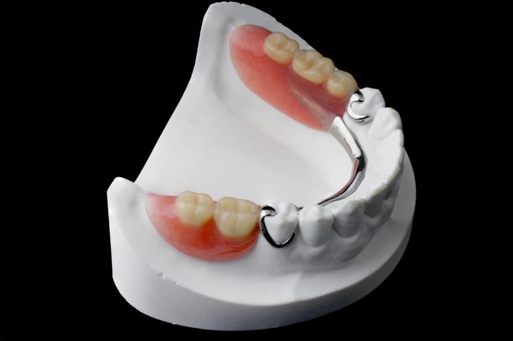 model of dentures | Partial Dentures Bridgeton, MO