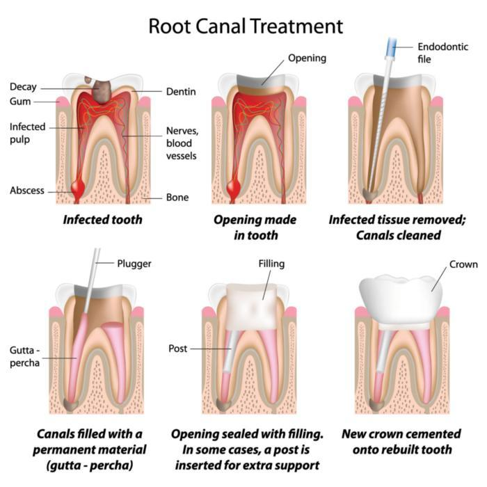 diagram of root canal treatment in Bridgeton MO