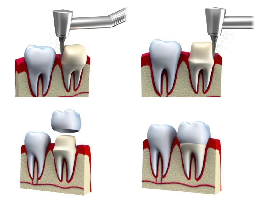 Graphic of procedure for dental crowns in Bridgeton MO