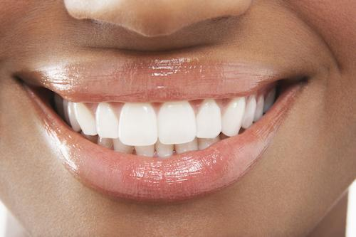 Woman with professional teeth whitening | Bridgeton Dentist Office