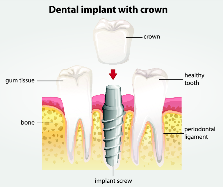 a diagram of the anatomy a dental implant in the mouth