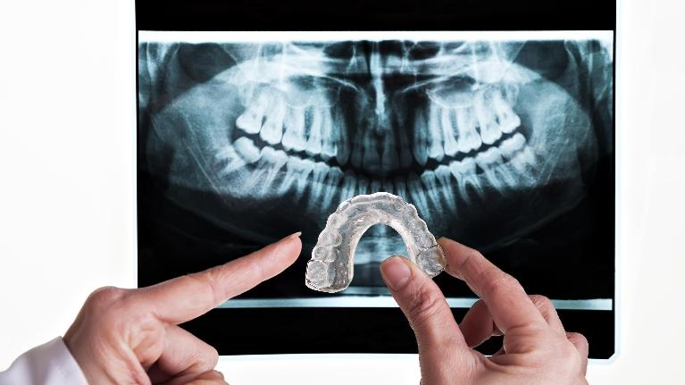 Occlusal Guards Maryland Heights