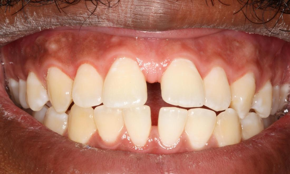 a smile with a gap between the two front teeth | dental fillings bridgeton mo